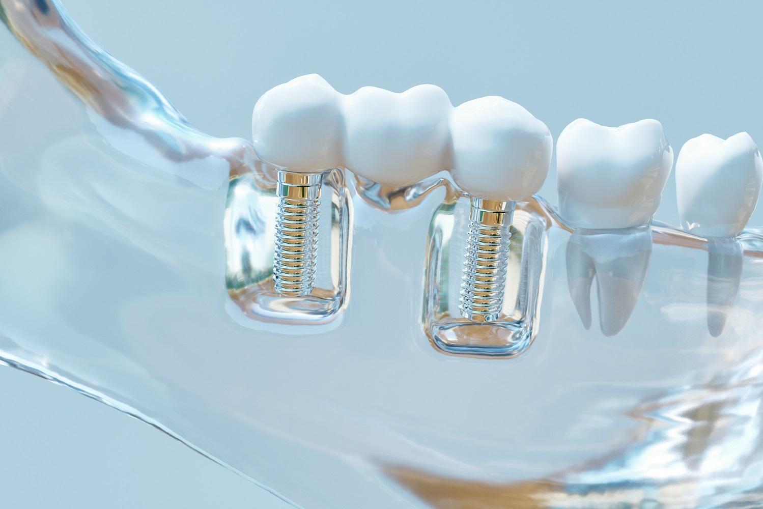 dental surgery technology